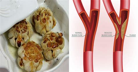 4 Effective Ways To Use Garlic For Hypertension